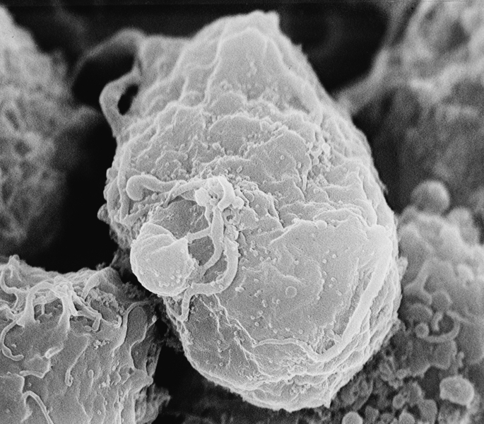 Using electron microscopy, the HIV virus can be seen as miniscule dots on the surface of the cells. Although small, it affects a large portion of the world's population. Researchers are looking into preventative treatment as an effective method to reduce the chance of people acquiring the disease. (credit: Courtesy of Wikimedia Commons)