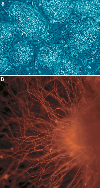 Undifferentiated stem cells (top) may become nerve cells (bottom). (credit: Courtesy of Wikimedia Commons)