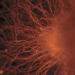 Undifferentiated stem cells (top) may become nerve cells (bottom).