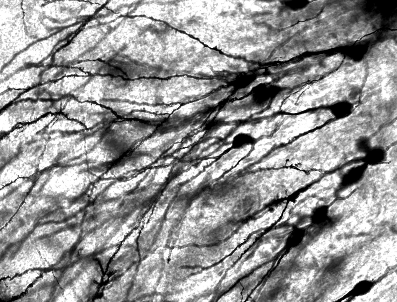 Neurons have been stained with a dye so they can be viewed. Groups of neurons are hypothesized to be diversified, so that redundancy is eliminated and efficiency throughout the brain is increased. (credit: Courtesy of Wikimedia Commons)