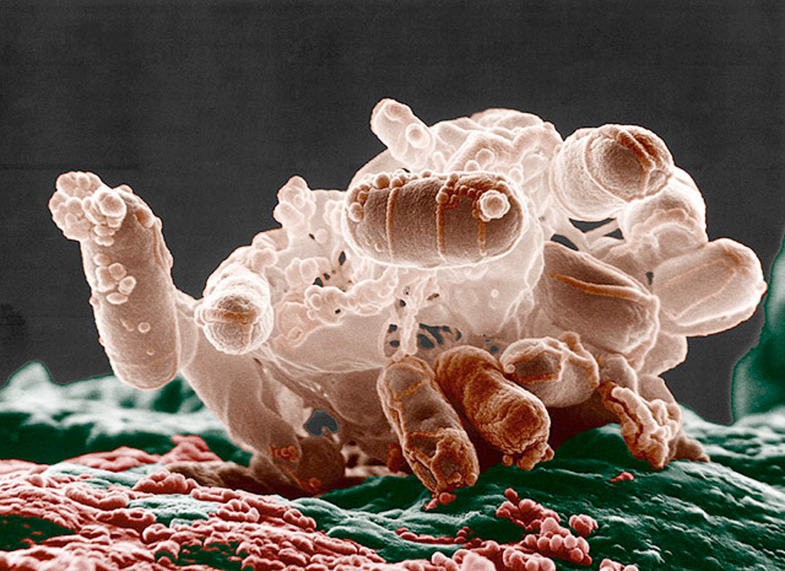 Escherichia coli bacteria and similar organisms cause illness and death, and can be difficult to treat due to the toxins they release. New research by Carnegie Mellon scientists suggests that the metal manganese can provide protection against the toxins, working as a preventative treatment against infection. (credit: Courtesy of Microbe World via flickr )