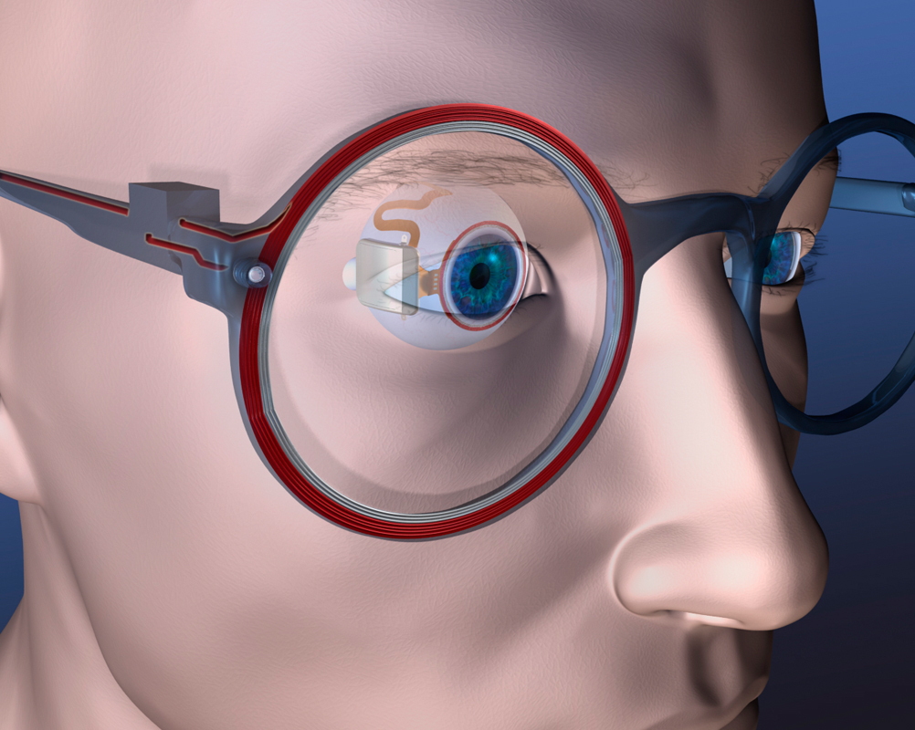 A team of Carnegie Mellon researchers led by senior systems scientist Shawn Kelly are developing a device aimed at combating blindness. A tiny prosthesis is surgically inserted near the back of the eye and communicates with a camera-equipped pair of eyeglasses. (credit: Courtesy of Shawn Kelly)