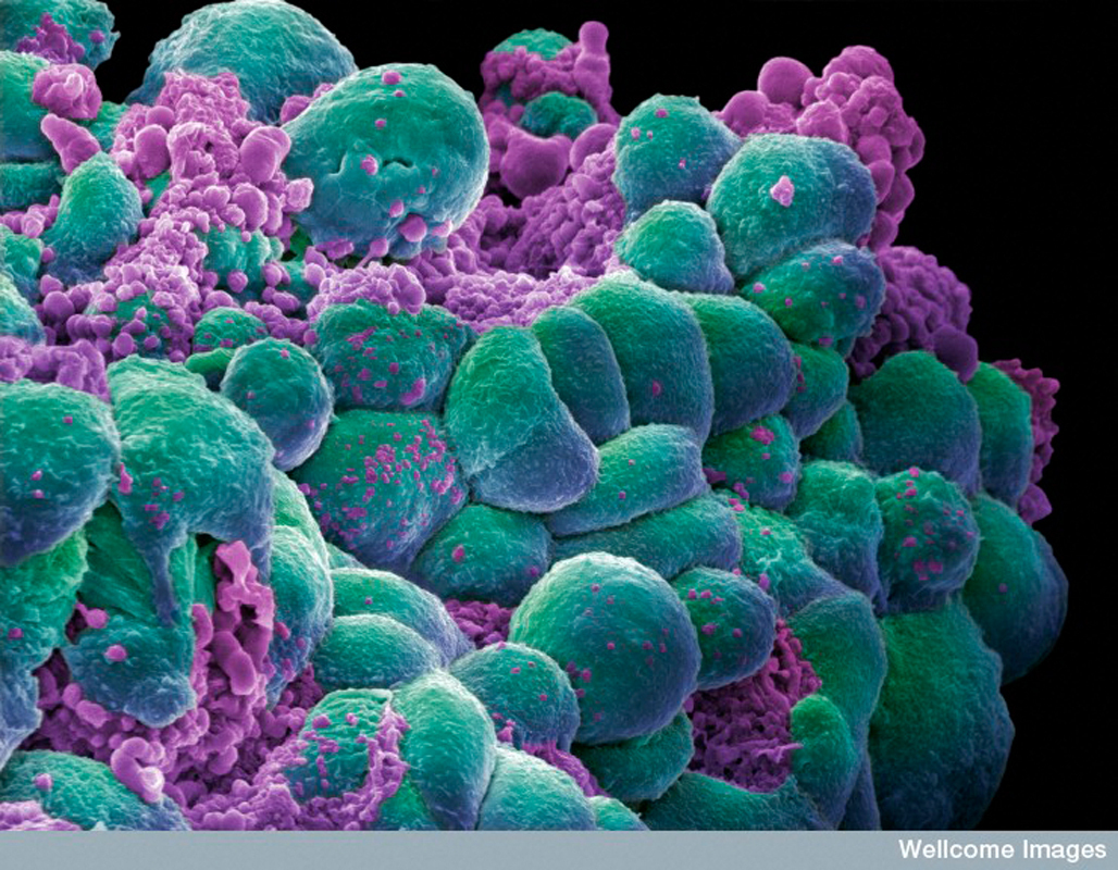 Carnegie Mellon researchers are developing a system that inspects thousands of images of cancer cells, such as those shown above, to improve cancer diagnoses. (credit: Courtesy of crafty_dame via flickr)