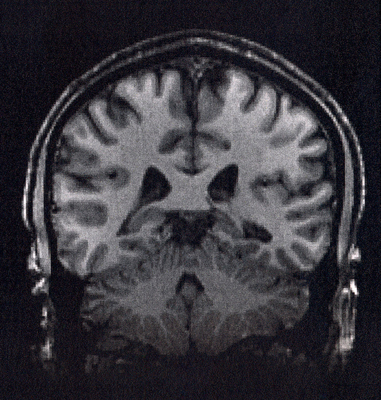 Above is a brain scan from a Functional Magnetic Resonance Imaging (fMRI) machine. The fMRI is used to determine which parts of the brain are active at a particular moment. (credit: Courtesy of Wikimedia Commons)