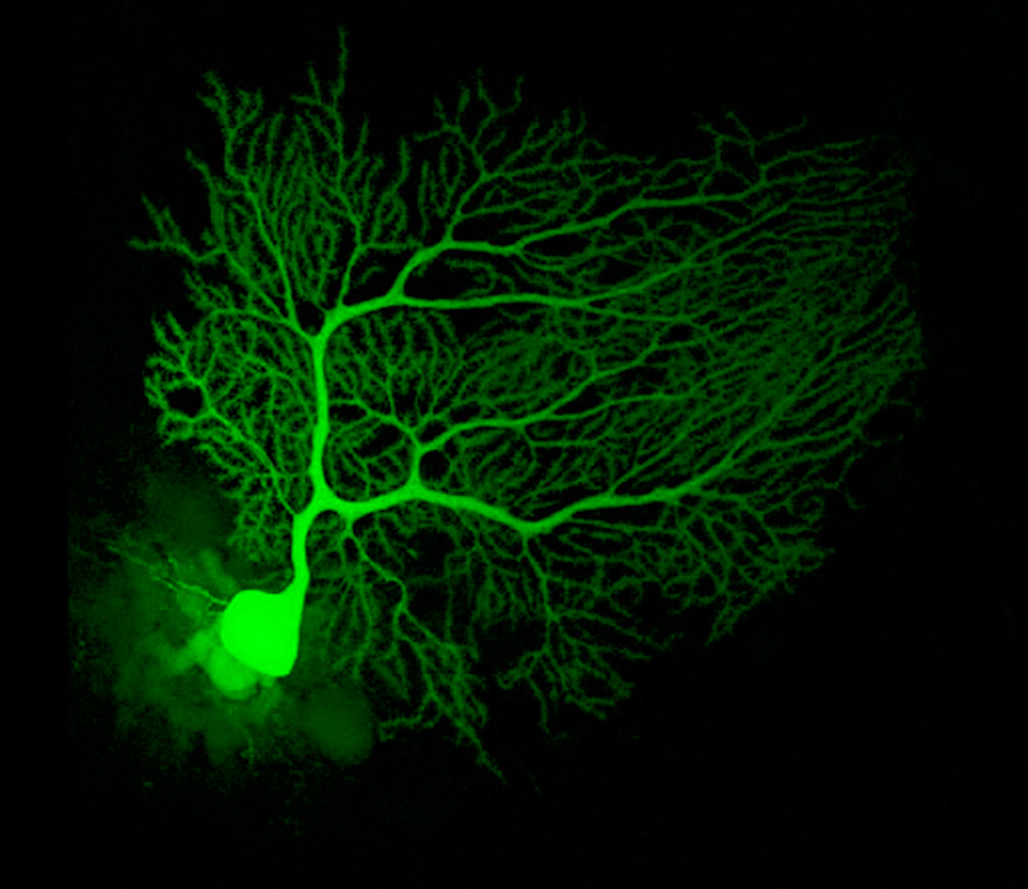 Neurons, shown above, are cells in the brain that transmit chemical signals. (credit: Courtesy of Wikimedia Commons)