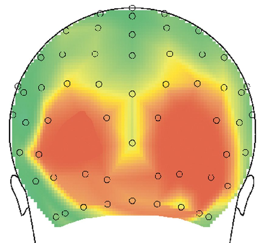 The locations on the back of the scalp where visual areas gave strong electrical responses to familiar images. (credit: Carl Olson)