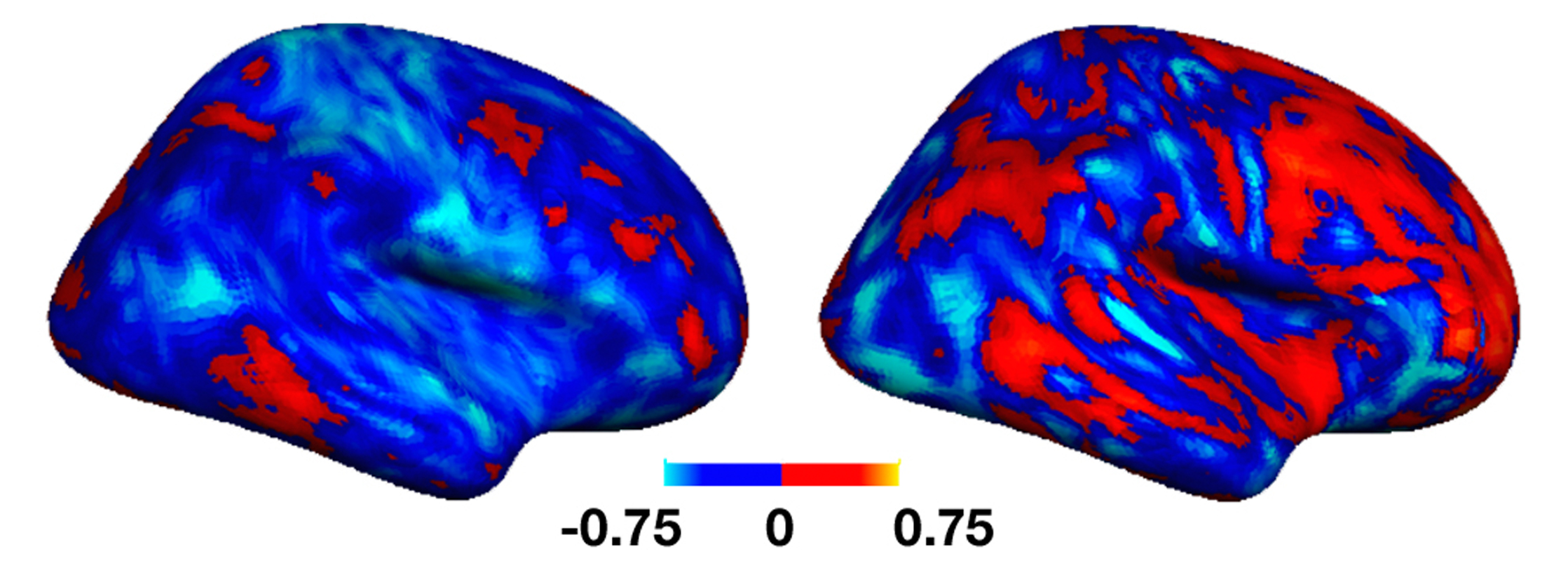 It has been discovered that connectivity patterns differ greatly between individuals with and without autism.The left image represents a less affected individual, while the individual represented by the right image is more affected. (credit: Marlene Behrmann)