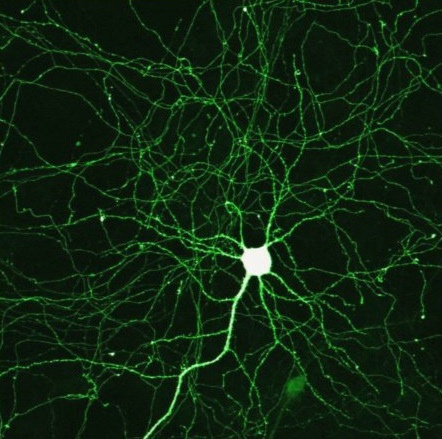 Pictured above is a representation of a neuron involved in a cortical circuit. Similar images were used by Kulhman and her research team. (credit: Mike Seyfang via Flickr Creative Commons)